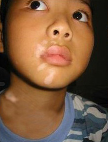 武汉孩子白癜风早期症状