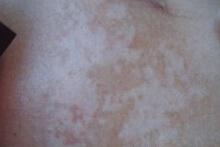 武汉治疗白斑的医院?如何才能更好的让白斑消失呢