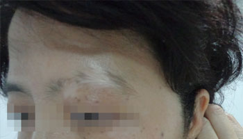 武汉治疗白斑哪家医院好?怎样治疗白癜风?