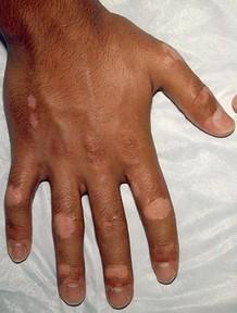 武汉治白癜风的专科医院?手部皮肤有白斑